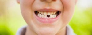 dente-de-leite